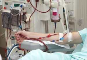 Patient-dialysis-treatment